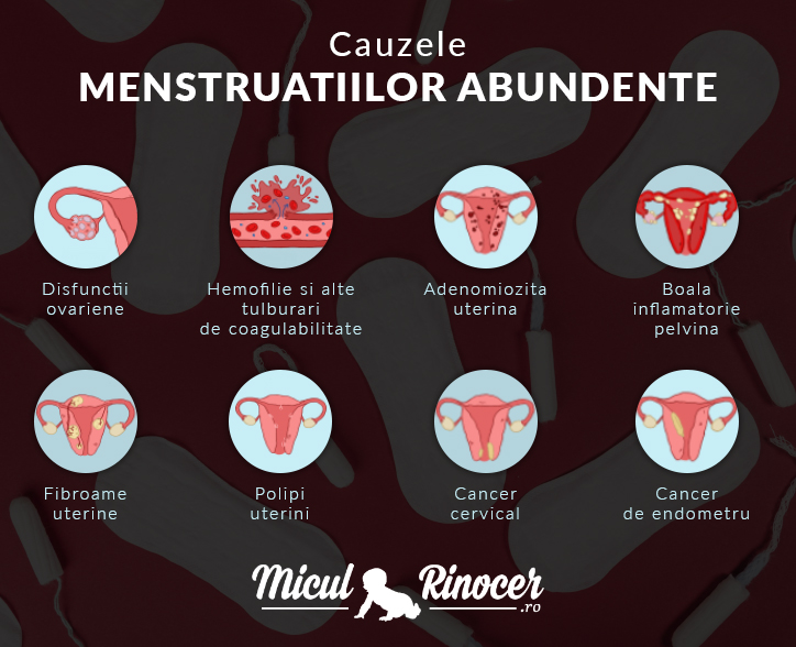 Miculrinocer.ro iti prezinta cauzele menstruatiilor abundente