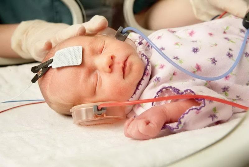 determinarea prezenței vederii la un nou-născut